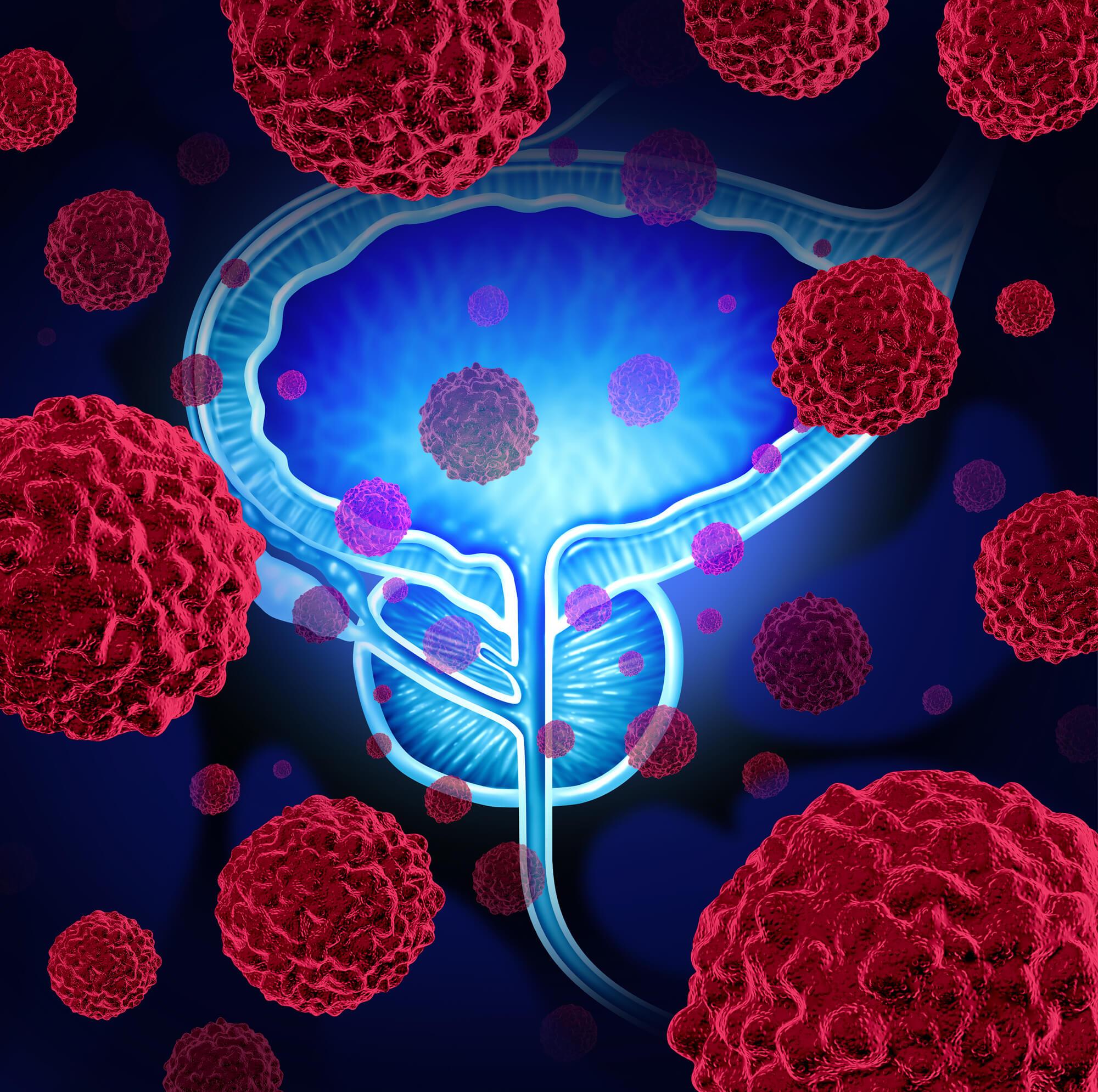 Cáncer de Próstata y la importancia de la detección oportuna
